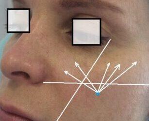 Объемная коррекция щечноскуловой области препаратами Stylage.