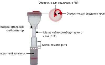 О методике получения PRP.